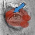 眼周囲皮膚炎
